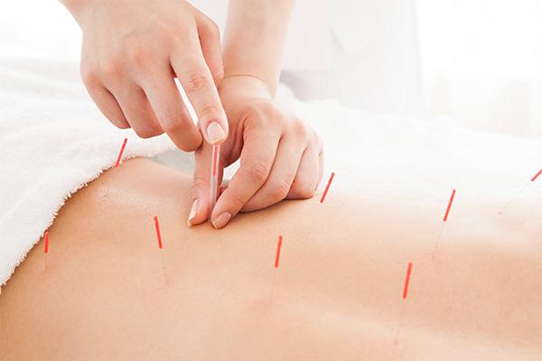 通常の鍼治療